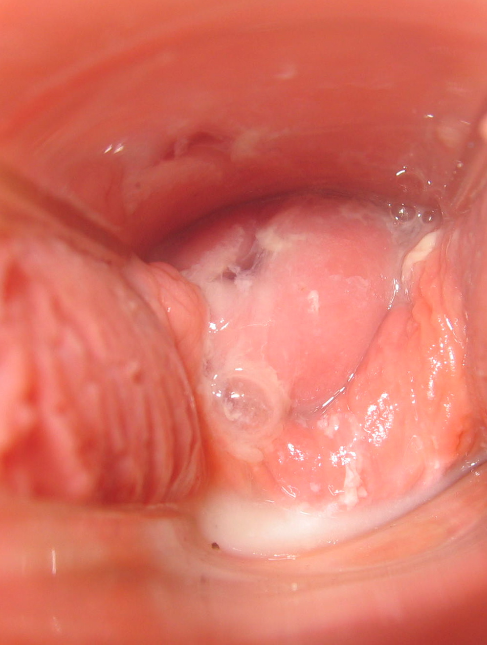 Cervix wet vagina soft early pregnancy