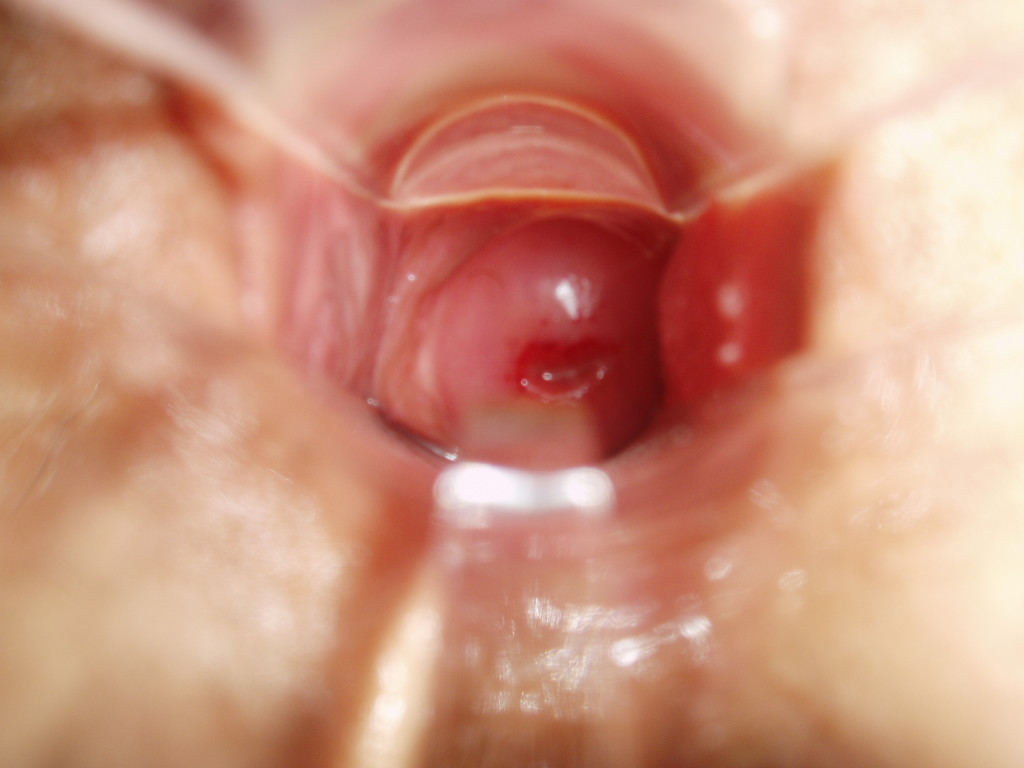 cervix-and-more-019-1