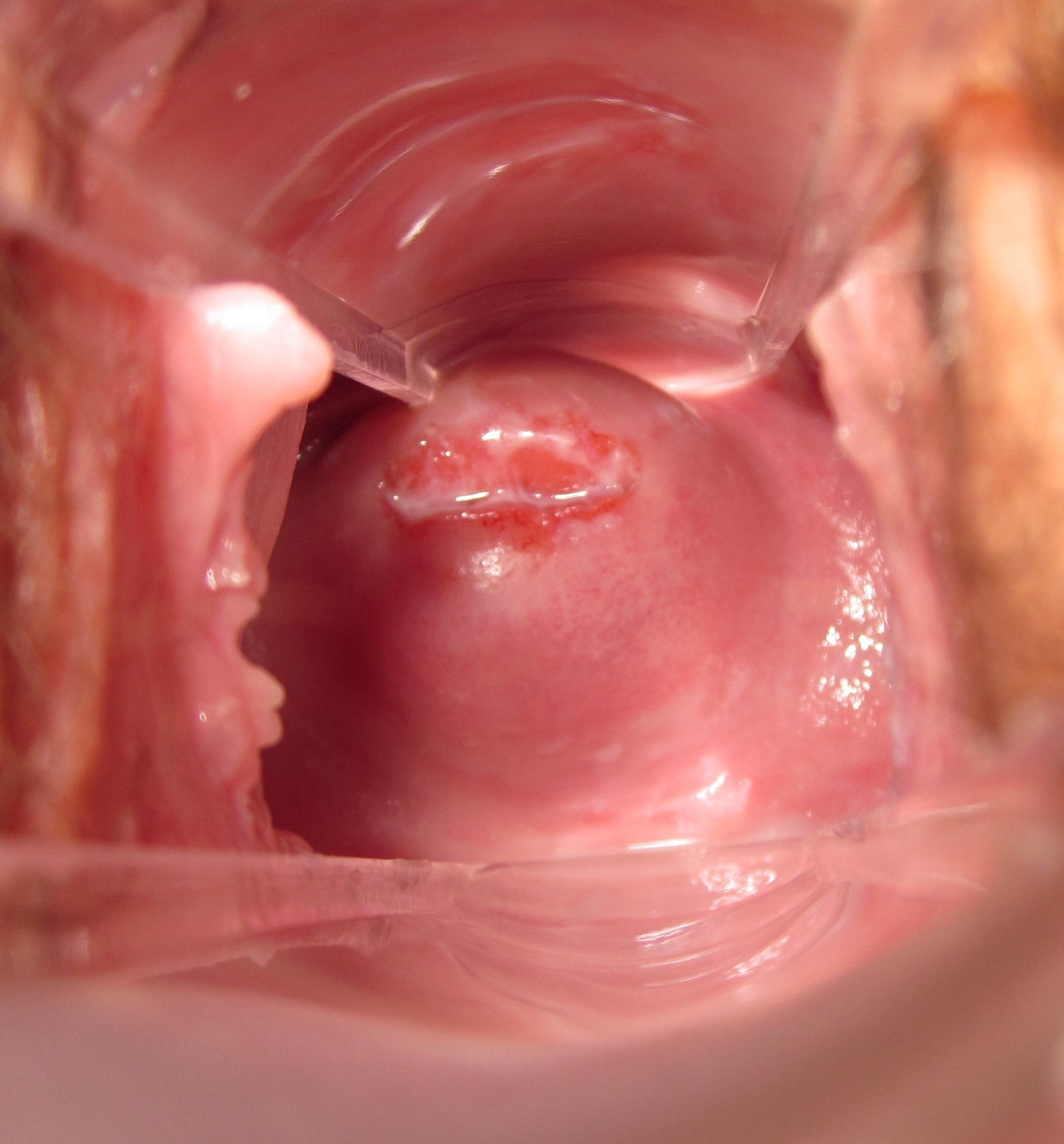 Age 23 – 3rd Pregnancy