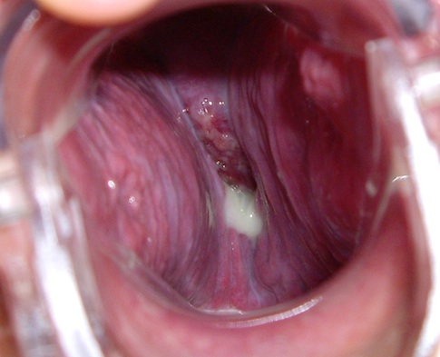 view into vagina during speculum exam; the ridged walls of the vagina bulge toward the center, little os is visible with some white fluid caused by candida overgrowth