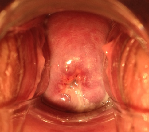 Age 29 – Pregnancy, Postpartum & IUD