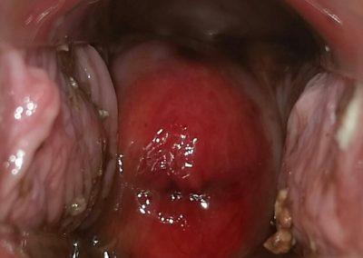 Age 25 – Day 10 – Cervical Ectropion